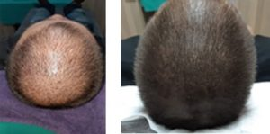 Micodot Pigmentation Therapy before and after